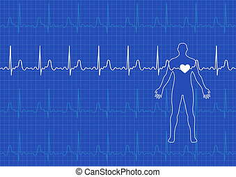 Medical background - Illustration of electrical activity of...