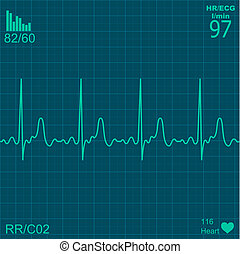 Heart monitor - Illustration of electrical activity of the...