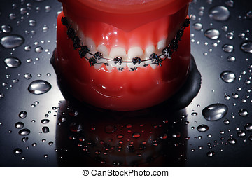 Dentures with braces waterdrops background,dramatic lighting
