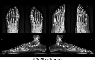 X-ray of both feet in three projections
