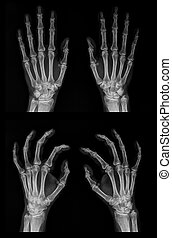 X-ray of both hands - Digital x-ray image of both hands in...