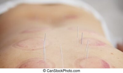 Needles in the back of a woman on acupuncture, close-up