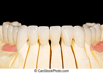 Dental zirconia bridge on isolated black background