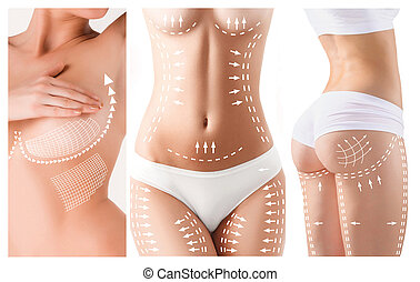 The cellulite removal plan. White markings on young woman...