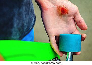 Injuries in extreme sports - Closeup of a young caucasian...