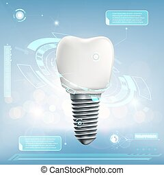 Human dental implant. Futuristic infographics of the tooth....