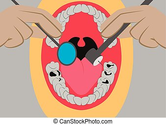 Vector illustration in flat design oral cavity and dental...