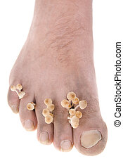 mycosis - dirty infected foot mycosis on white background