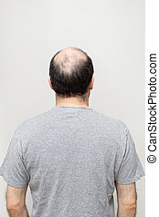 Bald Head - Rear View of Hair Loss at Middle Age Man