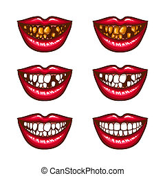 A collection of pop art icons of red female lips - smiling,...