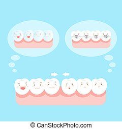 tooth wear different brace - cute cartoon tooth wear...