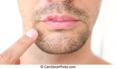 man touching sores on the lips. herpes. lip treatment.