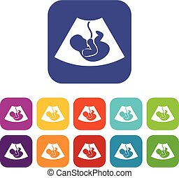 Ultrasound fetus icons set vector illustration in flat style...