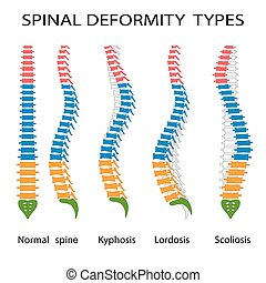 Spinal deformity types. - Illustration of spinal deformity...