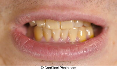 Yellow teeth of a man - A man opening mouth and showing the...