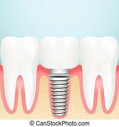 Realistic Dental Implant. Installation Of Dental Implant...