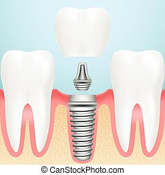 Realistic Healthy Teeth And Dental Implant. Installation Of...