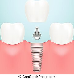 Human Teeth And Dental Implants Isolated On A Background....