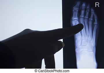 pie, radiografía, Dedos del pie, prueba, exploración