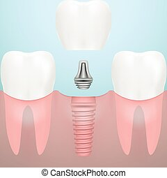 Human Teeth And Dental Implant Isolated On A Background....