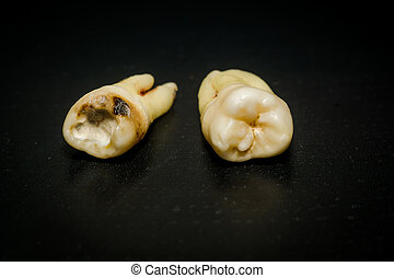 Tooth After Extraction - Human wisdom tooth after extraction...