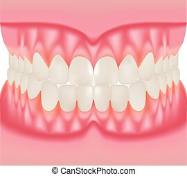 Dentures With White Teeth, Dentition The Gums Of The Upper And Lower Jaw, The Bite In Occlusion Isolated On A White Background. Vector Illustration.
