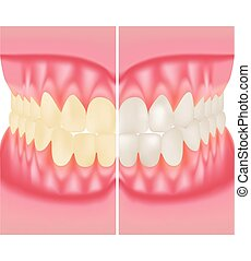 Teeth Whitening. Dental Care. Before And After View Of Teeth...
