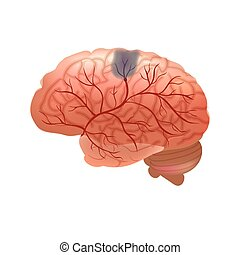 Realistic human sick brain isolated on white background. -...