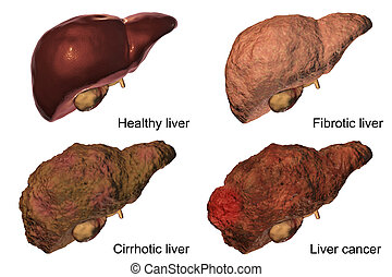 Liver disease progression in Hepatitis B and C viral infection
