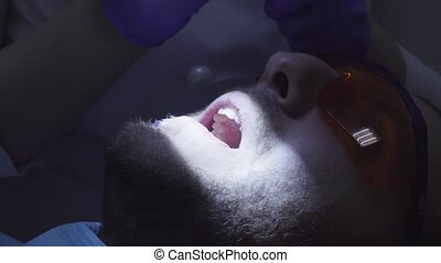 Dentist putting a composite filling on the tooth - Close up...