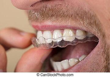Man Putting Transparent Aligner In Teeth - Close-up Of A...