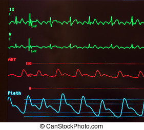 Close Up of Atrial Flutter - Close up of a monitor with...