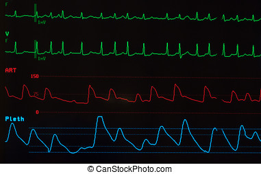 Monitor with Atrial Fibrillation - Close up of a monitor...