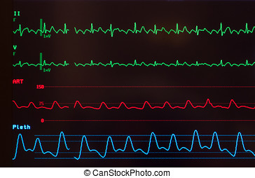 Monitor with Atrial Flutter - Close up of a monitor with...