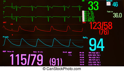 Monitor with Extreme Bradycardia - Close up of a monitor...