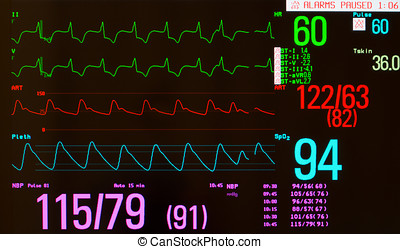 Paced Rhythm with Premature Heart Beat - Close up of a...