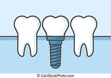 Dental Implant - Teeth with dental implant vector...