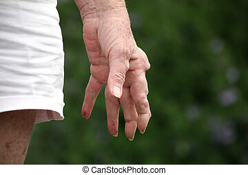 Arthritic hand - Living with pain series. Senior woman with...