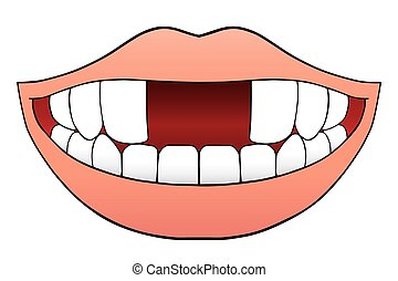 Two Front Teeth Missing - Smiling cartoon mouth has two...