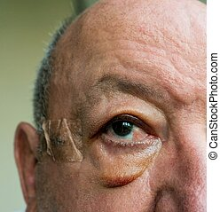 Close-up of elderly man face with edema after surgery