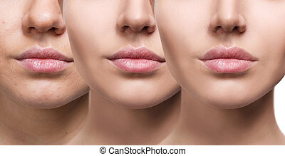 Lips of young woman before and after augmentation -...