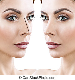 Woman before and after cosmetic nose surgery - Adult woman...