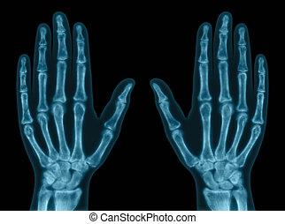 Hand Bones - X-ray of both hands Concept of exam