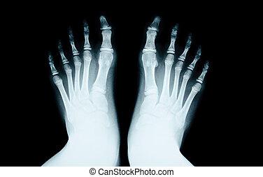 pie, human., radiografía