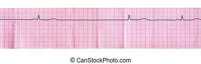 ECG tape with stop of sinus node and replacement complex...