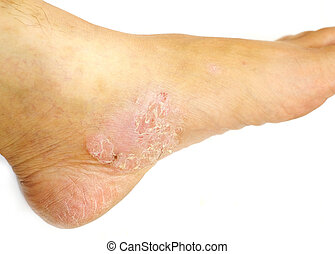 Psoriasis on white isolated