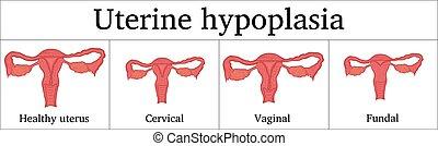 Illustration of Uterine hypoplasia - Some types of Uterine...