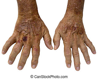 Elderly Male hands with Rheumatoid Arthritis and and spots -...