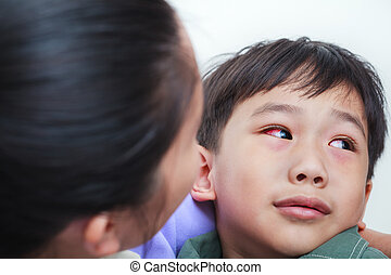 Closeup of chronic conjunctivitis with a red iris. Doctor...