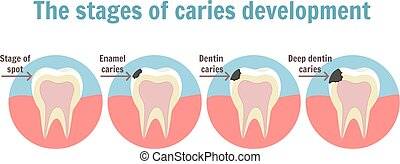 The stages of caries development. Dental toothache symbol....